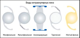 интраокулярные линзы